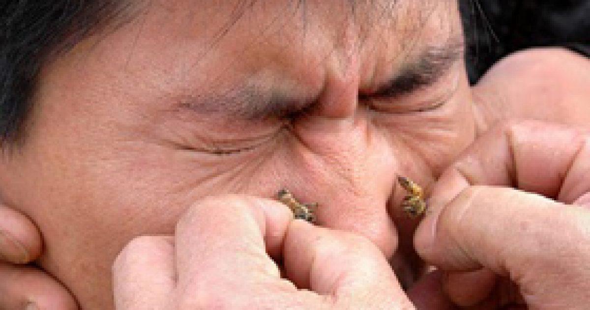 Gyógyító méhcsípés