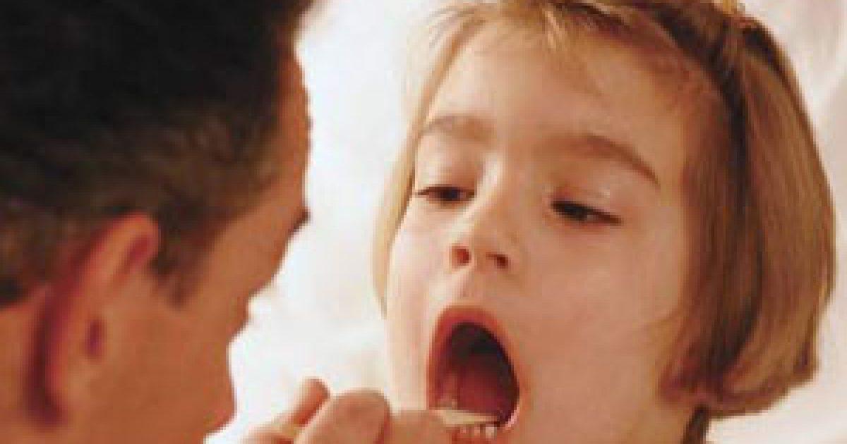 A mandulaműtét szükséges?