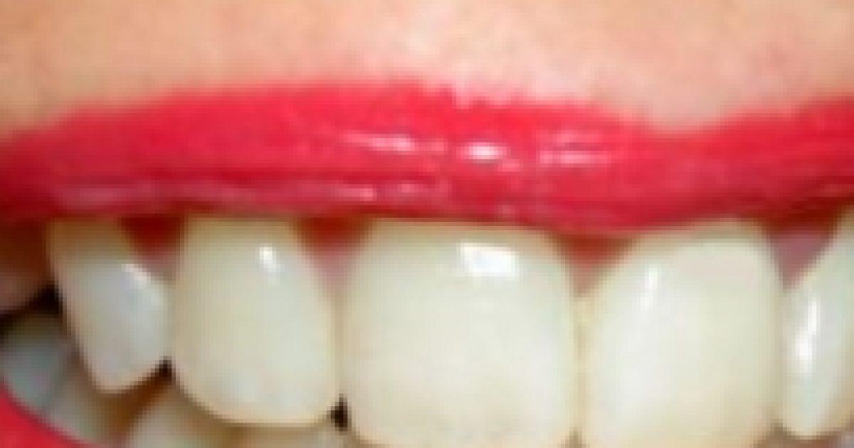 Mit tegyünk fogcsikorgatás ellen?