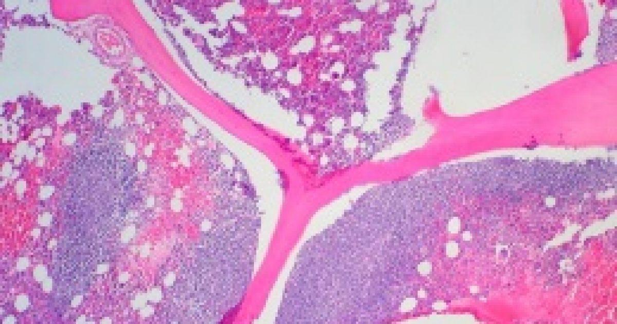 A kannabisz lassítja a daganat növekedését