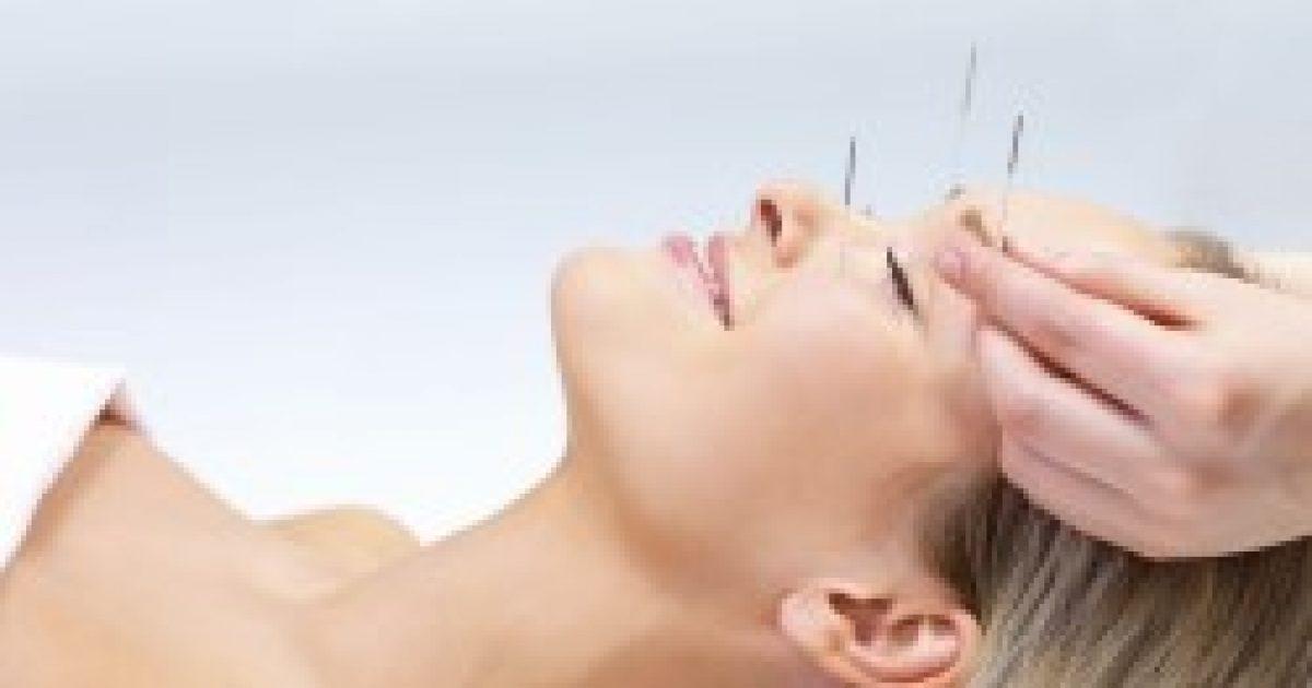 Hatékony lehet az akupunktúra a magas vérnyomás ellen