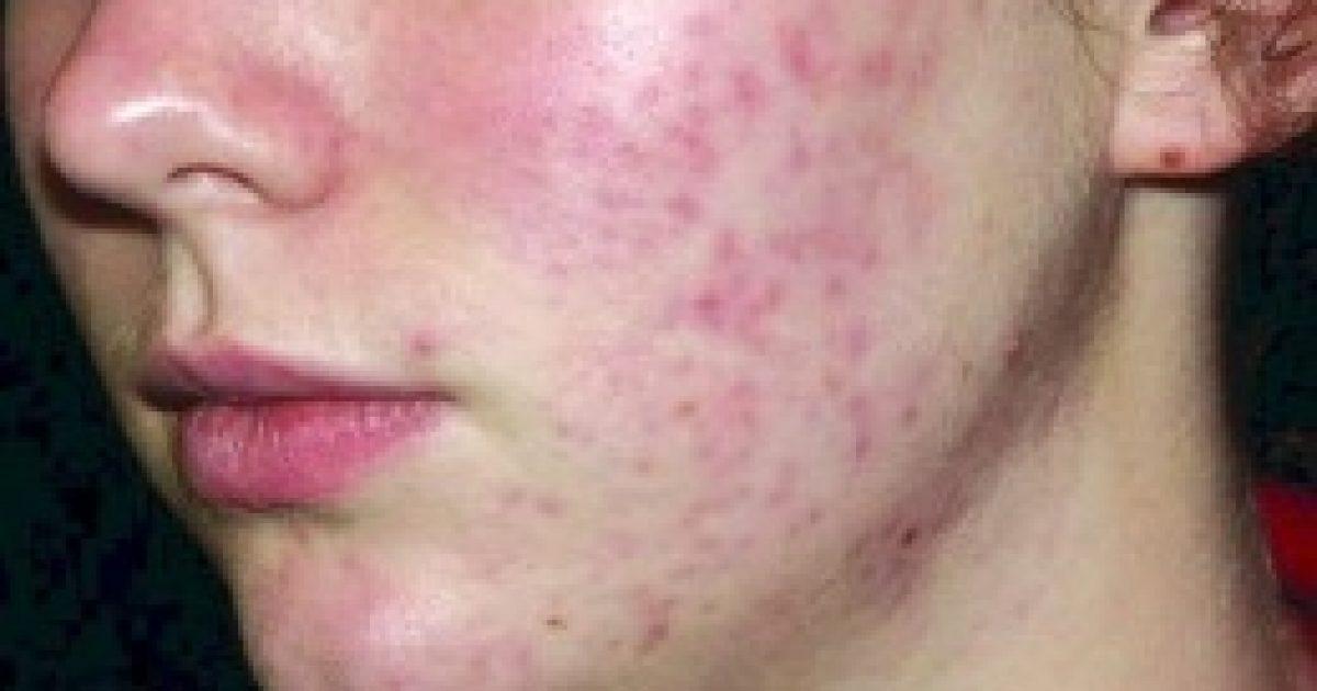 Kozmetikumok: az INCI nem segít