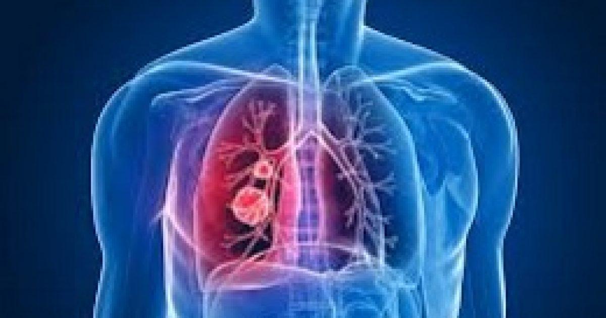 A szénhidrát is növeli a tüdőrák kockázatát?