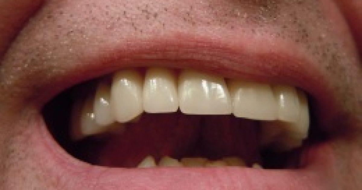 A fogak jelzik a napfény hiányát