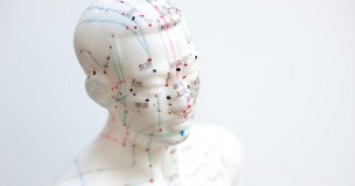 Az akupunktúra segíthet demenciában