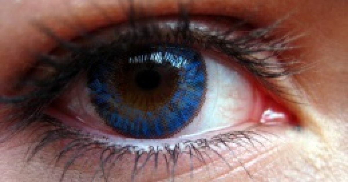 Vakságot okozhat, ha kontaktlencsében alszunk