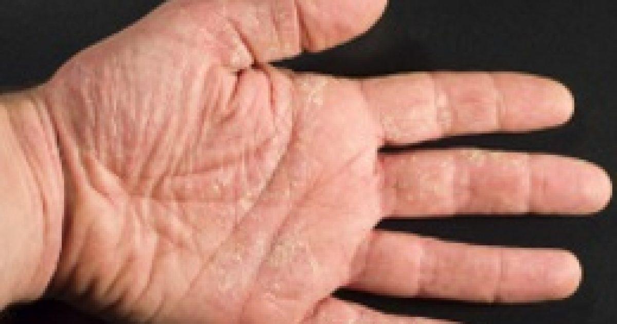 A gyengéd ápolás segít az ekcémásoknak