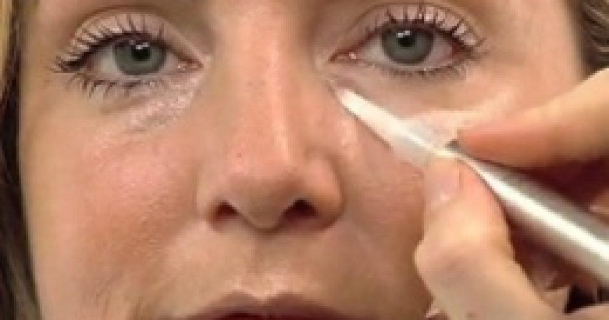 A szem alatti fehér pöttyök kiküszöbölésének okai és módszerei - Pattanás