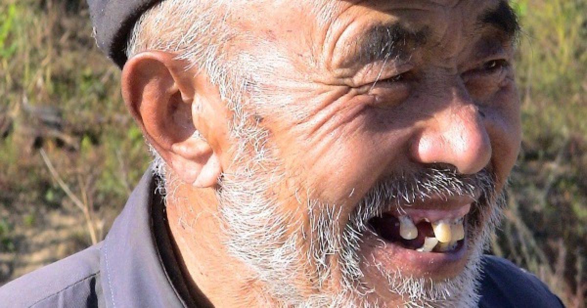 Potenciazavart okozhat a férfi rossz foga