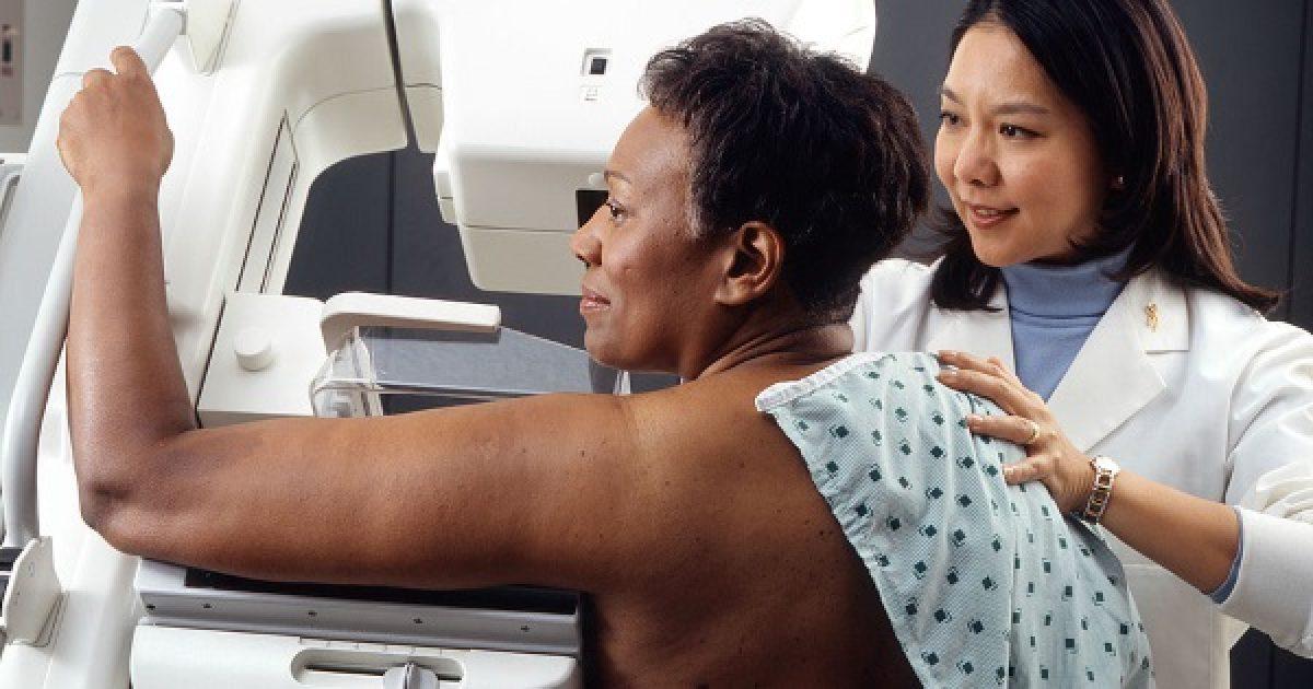 Ne hagyja ki a mammográfiát!