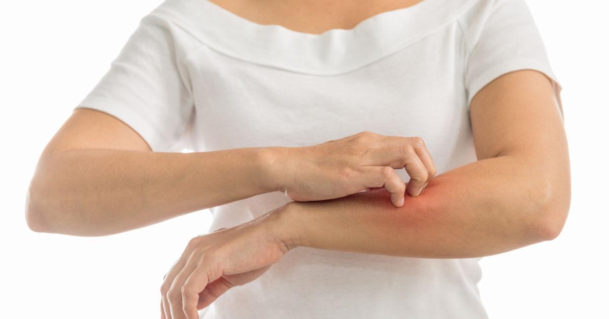 A rühesség tünetei, szövődményei és kezelése