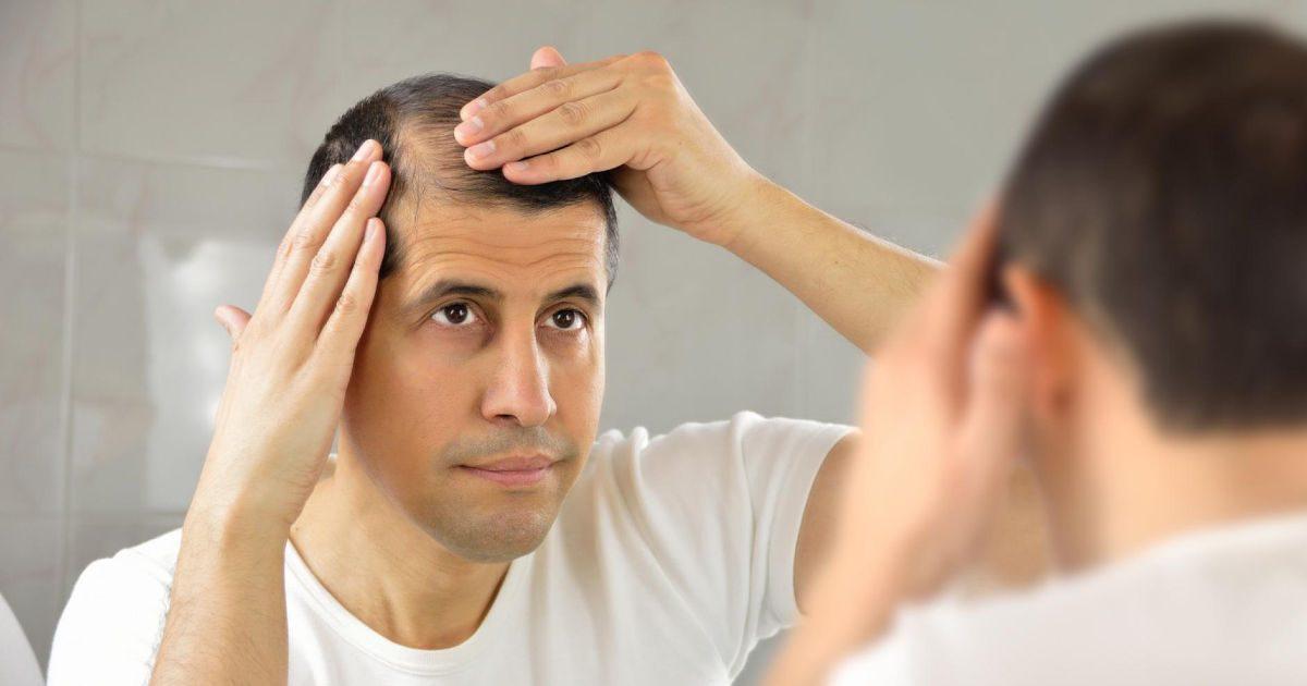 Mitől hullik a hajunk?