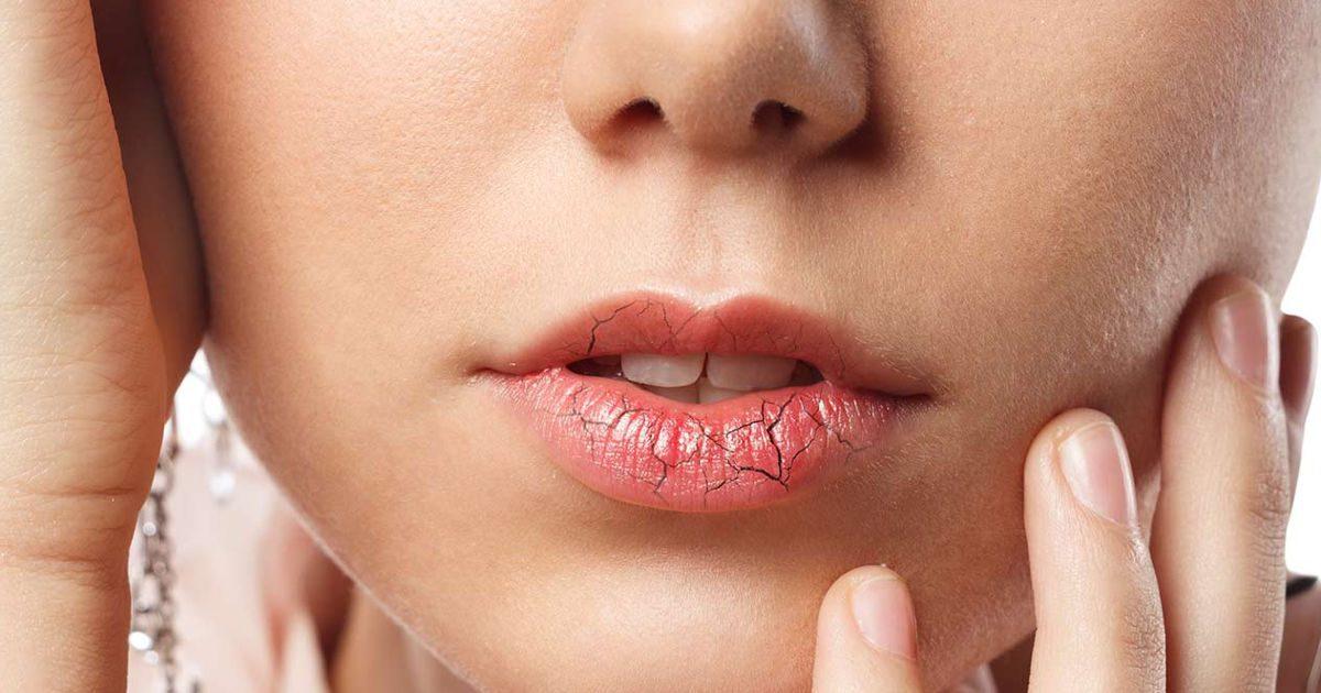 Mi segít a szájszárazság ellen?