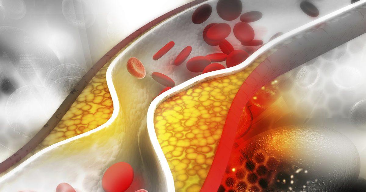 Koleszterinszint csökkentés gyógyszer nélkül (1)