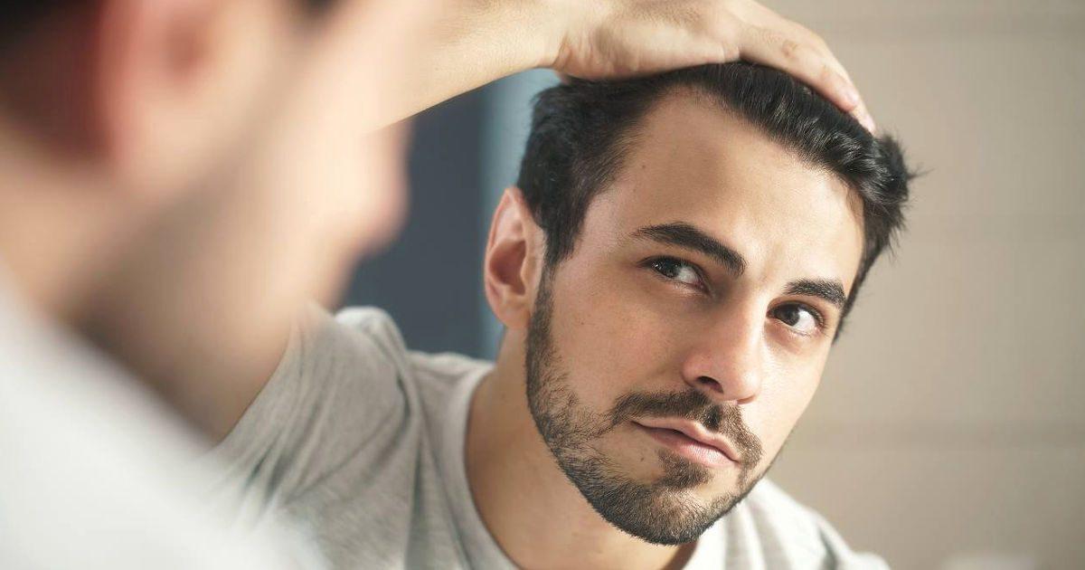 Hajhullás: nem mindegy, hogyan hullik a haja