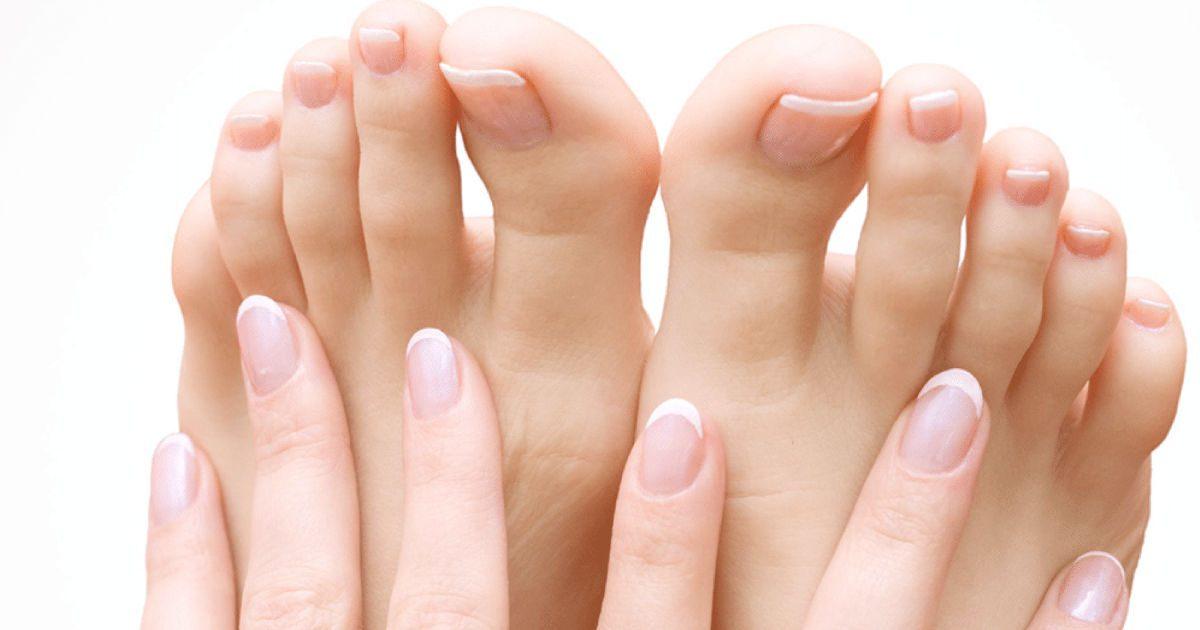 A körömgomba felismerése és kezelése (1)